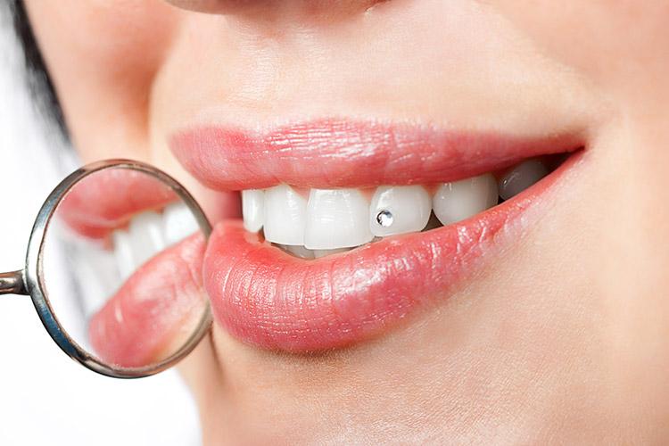 Statica Dentara